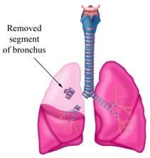 Teknik Operasi Pulmonary Lubectomy Dan Pneumonectomy pada Hewan (Bedah Thoraks)