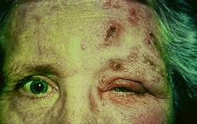 Shingles On The Face And Head Tips Curing Disease