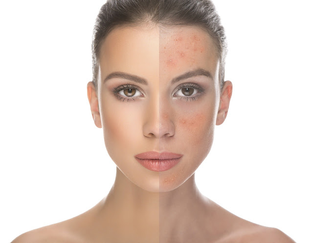 http://www.lush-fab-glam.com/2018/02/identify-acne-and-clear-it-for-good.html