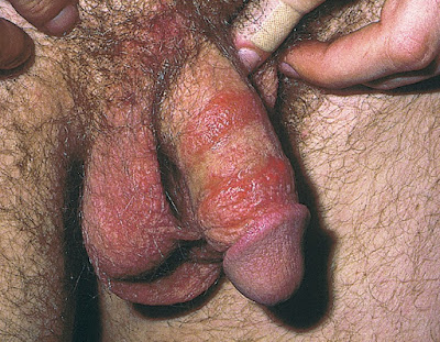 Contact dermatitis of the penis in a patient who was allergic to the adhesive tape of a bandage used to cover an episode of recurrent genital herpes