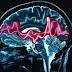 ¿Que pasa en el cerebro mientras la persona convulsiona?