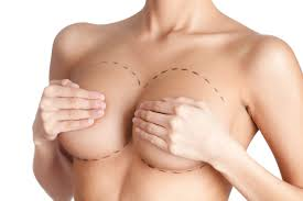 Breast surgery in Hyderabad