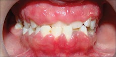 20+ Natural Home Remedies for Swollen Gums