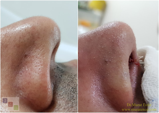 Nose Tip Surgery for Men - Male Nose Tip Plasty Operation in Istanbul - Men's Nose Tip Plasty - Nose Tip Reshaping For Men - Mens Nose Tip Plasty in Turkey - Nose Tip Plasty For Men - Nose Tip Plasty For Men Istanbul - Nose Tip Aesthetic for Men - Male Nose Tip Plasty Operation - Male Nose Tip Plasty Surgery in Istanbul - Male Nose Tip Plasty Surgery in Turkey - Male Nose Tip Aesthetic Surgery - Nose Tip Plasty In Mens Istanbul