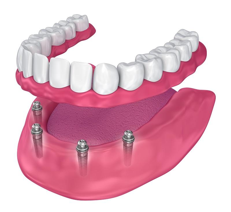 Denture Implants