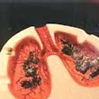 Stage 4 lung cancer treatment