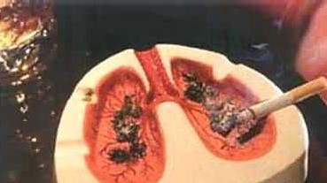 stage 4 lung cancer treatment, lung cancer treatment, non small cell lung cancer, lung cancer stage 4, metastatic lung cancer