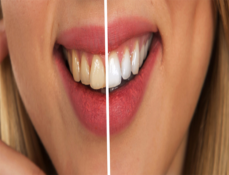 Memutihkan Gigi Dengan Cara Alami