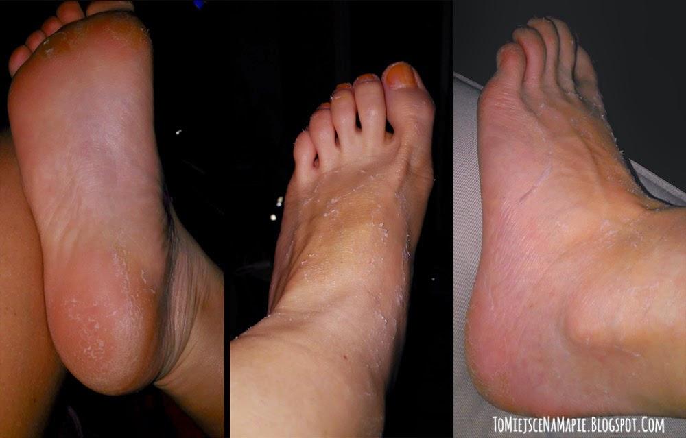 skóra po skarpetkach złuszczających
