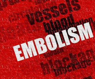 embolism-www.healthnote25.com