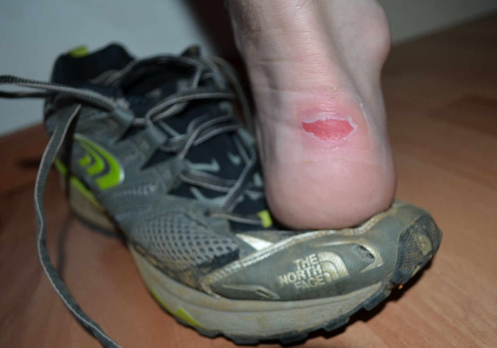 Leather Shoes Ankle Blister