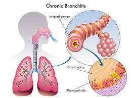 Cara Mengobati Bronkitis Secara Alami