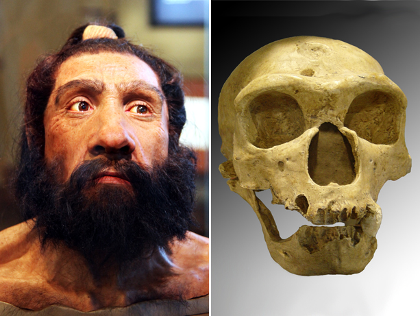 Human-Neanderthal gene variance is involved in autism