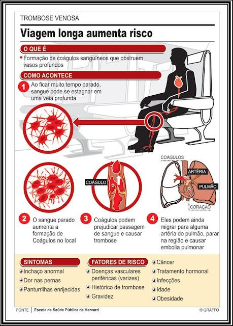 infografico como se prevenir de uma trombose em viagem longa