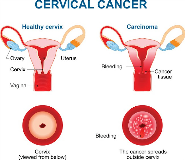 Importance Of Cervical Cancer Vaccine