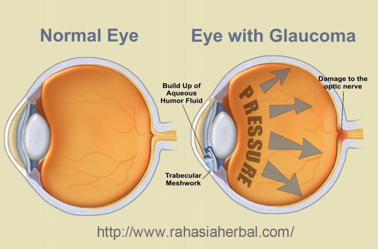 Pengobatan Penyakit Mata Glaukoma Tradisional