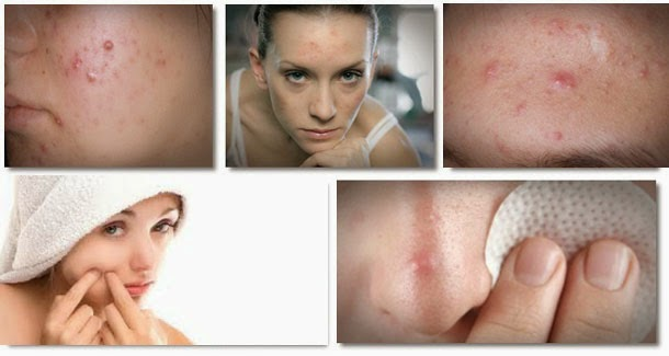 http://www.nbtips.com/2014/08/Natural-beauty-tips-to-cure-acne-problem.html