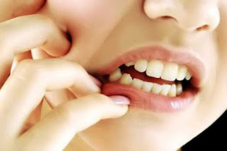 Natural Tips To Treat Swollen Gums