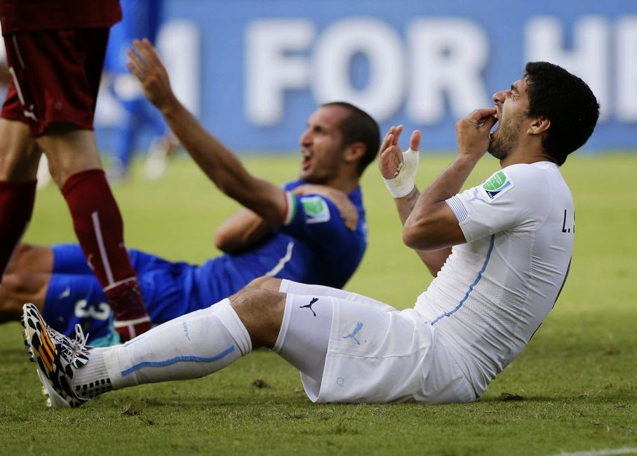 In this June 24, 2014 file photo, Uruguay's Luis Suarez holds his teeth after biting Italy's Giorgio Chiellini's shoulder during the group D World Cup soccer match between Italy and Uruguay at the Arena das Dunas in Natal, Brazil. On Thursday, June 26, 2014, FIFA banned Suarez for 9 games and 4 months for biting his opponent at the World Cup.