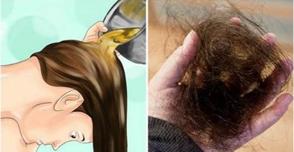 Los medios indios para el refuerzo de los cabello
