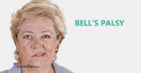 Penyakit bells palsy menyebabkan kelumpuhan pada wajah