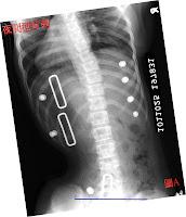 脊椎側彎, 脊椎側彎背架, 脊椎側彎矯正, 脊椎側彎 物理治療