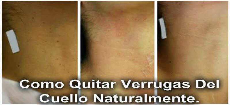Como quitar verrugas en el cuello naturalmente