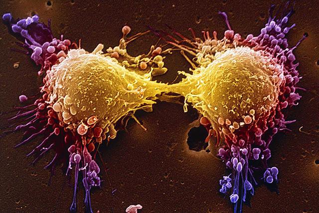 Prêmio nobel em medicina quebra o silêncio e revela: O câncer não é uma doença… Mas sim uma defciência!