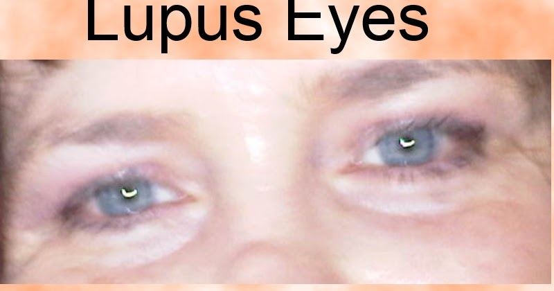 Image result for Lupus and eyes