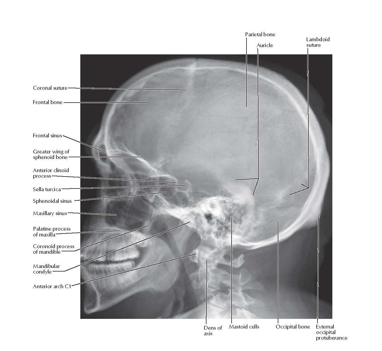 Skull: Lateral Radiograph Anatomy