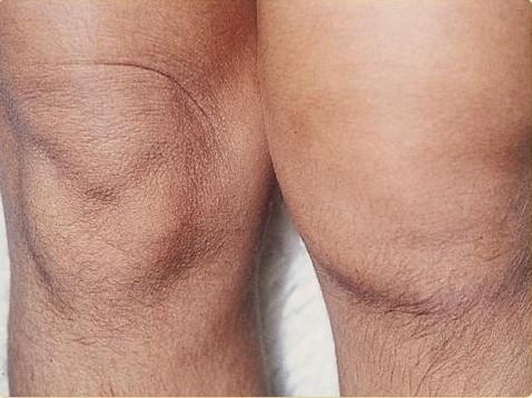 Artritis Remedios Naturales