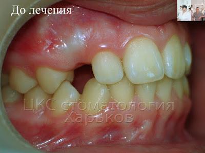 Ретинированный зуб верхней челюсти