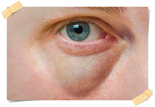 Bagaimana menghilangkan lingkaran gelap bawah mata yang berkesan
