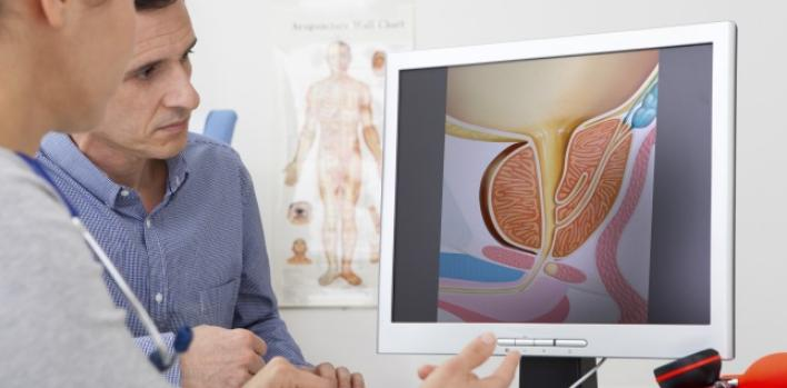 Where Is The Prostate Located In The Body? - SocaHealth