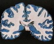 Beynin Bölümleri Boz Madde
