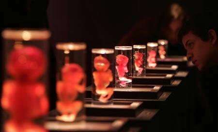 Gulsen S Medical Journal Bodies The Exhibition