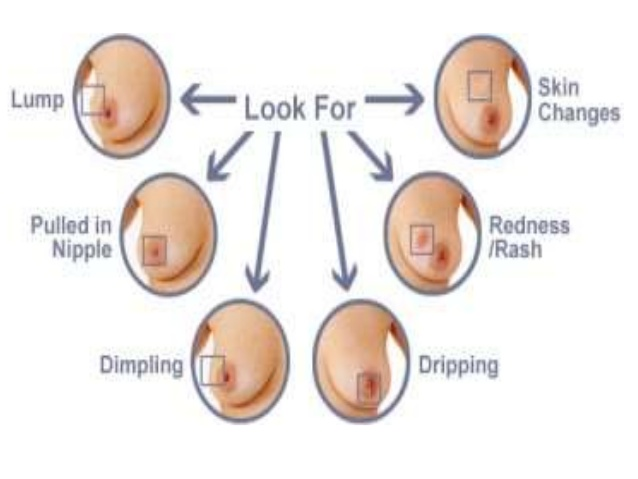 What Does A Lump In Your Breast Look Like