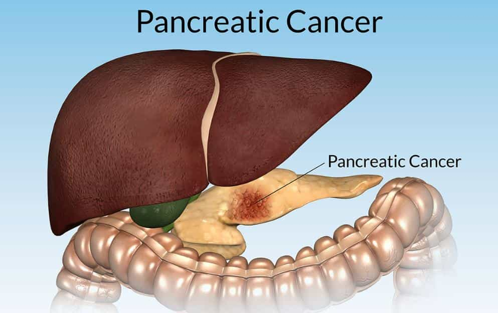 Stage 4 Pancreatic Cancer Prognosis