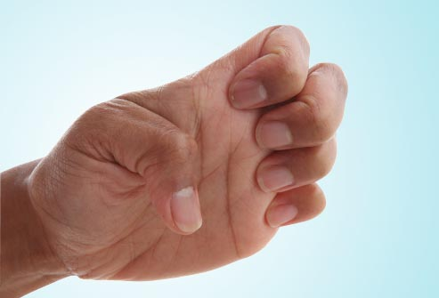 The fingers stiff