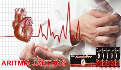Cara Mengobati Aritmia Jantung Hingga Sembuh