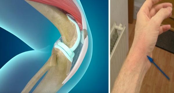 vindeca artrita si reumatismul