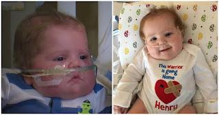 Γενναίο μωρό έκανε μεταμόσχευση καρδιάς και μετά από 10 μήνες στο Νοσοκομείο, επιτέλους πάει σπίτι του