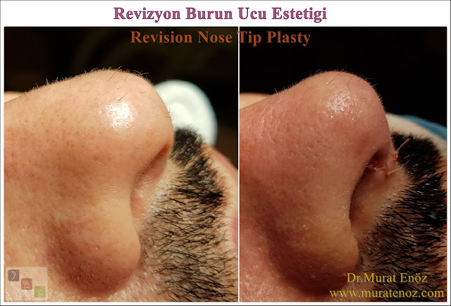 Revision nose tip plasty? - Revision nose tip surgery - Revision nose tip plasty in Istanbul - Revision nose tip plasty in men Istanbul