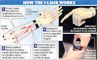 diagram showing how the i-limb works