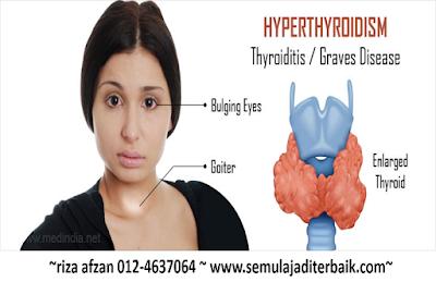 hyperthyroidism vivix