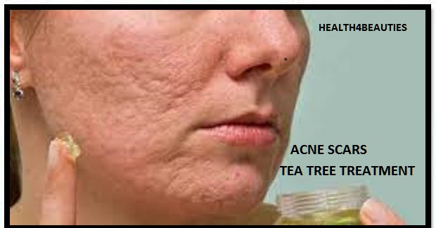 How To Use Tea Tree Oil For Acne Scars Home Remedies For