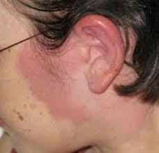Obat gatal dan eksim pada kulit di bagian leher dan pelipis