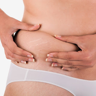 Home Remedies To Get Rid of Stretch Marks Naturally
