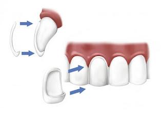 durabilidad carilla dental