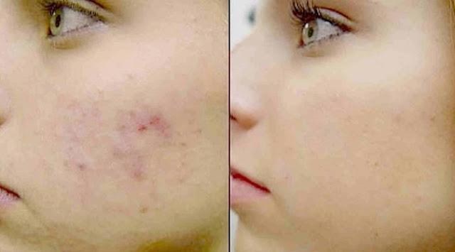 http://danahauses.blogspot.com/2016/12/cara-membuat-kulit-wajah-kencang-putih.html